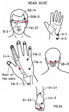 Pressure Points for migraine: 1) Base of Skull: locate the bony base of your skull in back. 2) Mid-Forehead: at the middle of your forehead, right between your eyebrows. 3) Eye Corners: feel the face at the outer corners of your eyes. Move your fingers away from the eyes until you find the spots just behind the bone. 4) Hand: the fleshy part between thumb & index finger. 5) Foot: where the bones come together between your big toe and your second toe. There are even more out there!