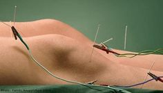 Scientists Finally Explain How Acupuncture Works… And It's Related To Marijuana - | Intellihub.com