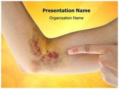 Burned hand powerpoint presentation template is one of the best hematoma powerpoint template is one of the best powerpoint templates by editabletemplates toneelgroepblik Choice Image
