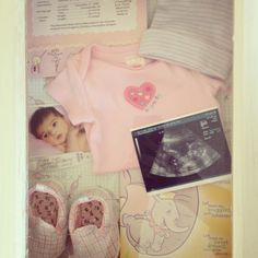 Shadow box with ultrasound