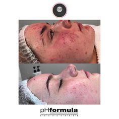 Excellent acne skin resurfacing results from our pHformula skin specialists in the UK Thank you for sharing these great results Skin Resurfacing, Skin Specialist, Acne Skin, About Uk, Aesthetics
