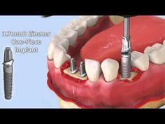 ▶ Matt Lasorsa, DMD - Mini-Dental Implants, Hernando, Florida - YouTube