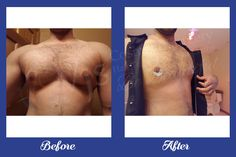 Check out the our recent results for the #gynaecomastia #surgery at our centre. We gives the best ever treatment without leaving any scar or other side effects.