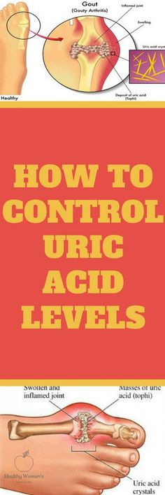 How to Control Uric Acid Levels - Daily Women Wellness Gout Remedies, Health Remedies, Natural Remedies, Health Tips, Health Care, Fitness Tips, Health Fitness, Uric Acid, Womens Wellness