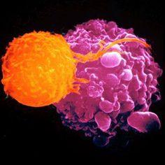 NK 'natural killer ' cell attacks a tumor cell