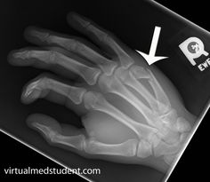 And I allways ask..ok, so who won, you or the wall, dumbass!?   Boxer's fracture