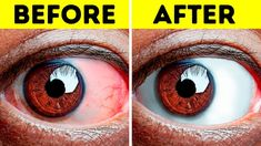 8 Exercises All People With Tired Eyes Need to Do Yoga Position, Facial Bones, Change Your Eye Color, Eye Pain, Eye Sight Improvement, Healthy Eyes, Facial Muscles, Sore Eyes, Carpal Tunnel