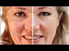 Maschera Viso al Bicarbonato Fai da Te - DIY Face Mask - YouTube