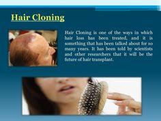 hair-loss-blog by HairCloningx via Slideshare Hair Cloning, Hair Transplant, Hair Loss, Treats, Blog, Future, Sweet Like Candy, Goodies, Future Tense