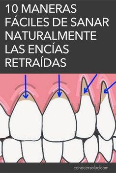 La recesión de las encías es el término médico que describe cuando el margen del tejido de las encías que rodea al diente se retira, exponiendo más del diente o su raíz. Las encías que se retraen pueden producir huecos notables, lo que facilita la acumulación de bacterias causantes de enfermedades. Si no se trata, el tejido de soporte y las estructuras óseas de los dientes pueden resultar gravemente dañados y, en última instancia, pueden provocar la pérdida del diente. El retroceso de las…