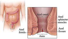Romper el circulo vicioso de la fisura anal