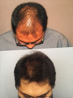 PROCEDURE is the most important part of the hair restoration process