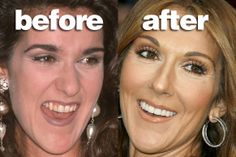 Celebs And Their Teeth: Before And After Fixing!