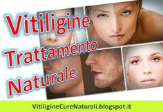Come Trattare la Vitiligine in Modo Naturale: Rimedi della Nonna per Trattamento Naturali. Vitiligine Cure Naturali: Miracolo per vitiligine