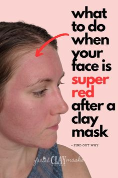 Is redness after clay masks normal? Sometimes, but here's what you need to know, if this is normal, good or if you should be concerned. + tips to prevent this in future. #redness #face #mask #red… More