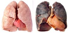 The lungs on the left are the good ones the one on the right are bad cause of smoking so what I have to say is DONT SMOKE.
