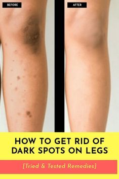 Don't let the scars & dark spots on your legs stop you from exposing your legs in short outfits! Learn how to remove dark spots on legs with this post. Black Spots On Skin, Dark Spots On Legs, Skin Spots, Acne Dark Spots, Black Skin Care, Lighten Scars, Lighten Dark Spots, Lighten Armpits, Remove Scars On Legs