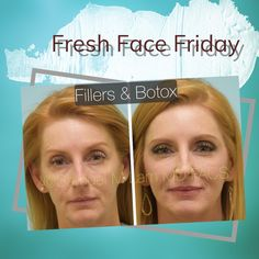 FRESH FACE FRIDAY: This woman had Botox and fillers performed elsewhere and was not satisfied. She is shown two weeks after Botox and three syringes of Restylane fillers placed artistically throughout her face and she is very happy with the results.    Wondering how to schedule a consultation with a Double Board Certified Facial Plastic Surgeon, Dr. Lam? Easy! Contact us at: ⠀ 📞972-312-8188 ⠀ Botox Fillers, Facial Rejuvenation, 2 Way, Fresh Face, Health, Schedule, People, Friday, Plastic