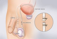 Remedies for Premature Ejaculation - Vasectomy Besides condoms, a vasectomy is the only birth control option available to men. It involves surgically closing the vas deferens  the tubes that carry sperm from the testes, through the reproductive system. This prevents the release of sperm but doesnt interfere with ejaculation. Pros: Permanent, cheaper than tubal ligation, almost 100% effective. Cons: Requires surgery, not effective immediately, may not be reversible. Follow My Simple Sug...