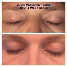 ❤️️Rodan + Fields NEWEST product is: LASH BOOST!!!!❤️️ So are YOU ready for:  ✔️Fuller-Looking Lashes ✔️Longer-Looking Lashes ✔️Darker-Looking Lashes 100% Natural and 100% YOURS! Message me to get on my waiting list to be one of the first to get your own #LASHBOOST in November!!! Or better yet, join me in the business and get your own LASH BOOST in your business kit!!! Here is my business partner - Julie Giffen Waldrop's FOUR week results!!! #amazing And it works on eye brows too 😊