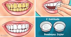 Top Oral Health Advice To Keep Your Teeth Healthy. The smile on your face is what people first notice about you, so caring for your teeth is very important. Unluckily, picking the best dental care tips migh Teeth Health, Healthy Teeth, Oral Health, Healthy Life, Healthy Food, Coconut Oil For Teeth, Coconut Oil Pulling, Teeth Whitening Remedies, Natural Teeth Whitening