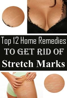 Top 12 Home Remedies To Get Rid of Stretch Marks