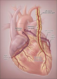 Coronary-Artery Bypass Grafting - Now Cath Lab Nurse, Percutaneous Coronary Intervention, Cardiac Nursing, Medical Anatomy, Human Anatomy And Physiology, Nursing Notes, Nursing Tips, Medical Coding, Circulation