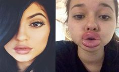 Teens Try to Copy Kylie Jenners Lips Using Shot Glasses...and Regret It | Cambio
