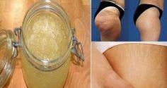 Elimina las estrías y la celulitis con este remedio casero