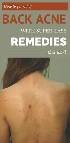 How to get rid of back acne with super-easy remedies that work.