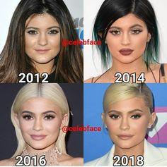 Kylie may refer to: Kylie Jenner Plastic Surgery, Celebrity Plastic Surgery, Kardashian, Blonde Hair Colour Shades, Hair Color, Kylie Jenner Body, Kyle Jenner, Bad Plastic Surgeries, Welcome To Reality