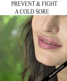 Keep Cold Sores At Bay With These Tips