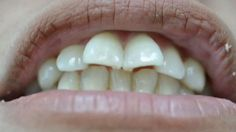 Decídete a cambiar tu vida con solo cambiar tu sonrisa con tan solo un blanqueamiento y 4 carillas de porcelana E-max tendrás la sonrisa de tus sueños Llámanos al 2-836826 o escríbenos por más información al 0990755754  #belleza #estetica #salud #follow #bestoftheday #F4F #Follow #Followme #L4L #Like4Like #belleza #salud  #carillas  #samborondon #guayaquil #venners #mouth #sonrisa #boca  #cuenca #machala  #loja #ambato #salinas #playas #baños #riobamba #manabi #costa #sierra #oriente — en…