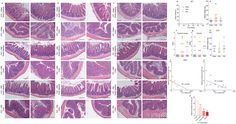 Dietary emulsifiers impact the mouse gut microbiota promoting colitis and metabolic syndrome.
