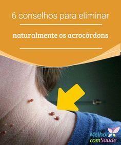 Acrocórdons: 6 conselhos para eliminá-los naturalmente A ação anti-inflamatória e antiviral do suco de abacaxi nos ajudará a eliminar os acrocórdons e evitará a sua propagação para outras partes do corpo.