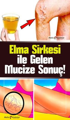 (notitle) - skin care and health .- (notitle) – cilt bakımı ve sağlık (notitle) – skin care and health to the - Cold Home Remedies, Natural Health Remedies, Herbal Remedies, Salud Natural, Facial Exercises, Natural Medicine, Beauty Care, Health Tips, Herbalism