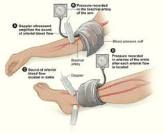 An overview of the vascular assessments performed in different vascular beds - Google Search