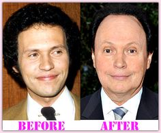 Diane Keaton Plastic Surgery Before And After # ...