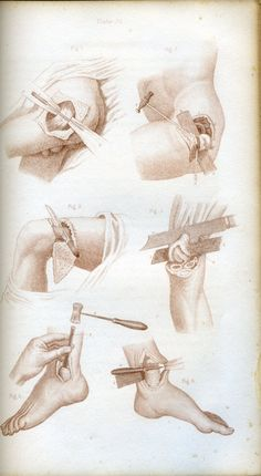 page from a pre-civil war surgical procedures medical book ... braceface.com