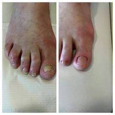Schimmelnagelbehandeling, voor en na de behandeling met een correctiegel.