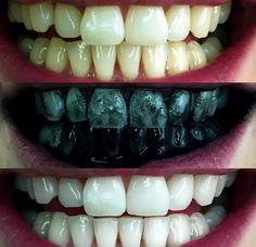 Charcoal Teeth Whitening Toothpaste, Tansmile Natural Activated Charcoal Toothpaste Mint Fluoride Free Toothpaste Bad Breath and Teeth Stains Remover Toothpaste (Pack of Teeth Whitening Remedies, Natural Teeth Whitening, Whitening Kit, Activated Charcoal Teeth Whitening, Charcoal Toothpaste, Teeth Implants, Dental Implants, Dental Surgery, Dental Health