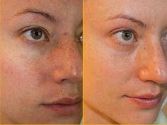 Reverse Regimen Results! Take care of unhealthy looking Sun Damaged skin!!! https://afernandez.myrandf.com/Shop/Reverse