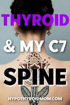 Hypothyroidism Treatment, Hypothyroidism Diet, Thyroid Diet, Thyroid Issues, Thyroid Cancer, Thyroid Problems, Thyroid Health, Thyroid Gland, Tips