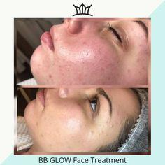 #beautylashesgr #wrinkles #makeuplover #makeupjunkie #makeupblogger #bb #glow #bbglow #bbglowkorea #bbglowgreece #flawless #darkcirclus #lady #girl #woman Face Treatment, Medical Spa, Beauty Queens, B & B, Makeup Junkie, Makeup Addict, Lady Girl, Glow, Woman