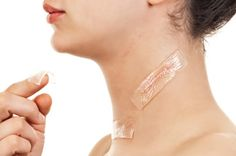 How to reduce Hypertrophic scars