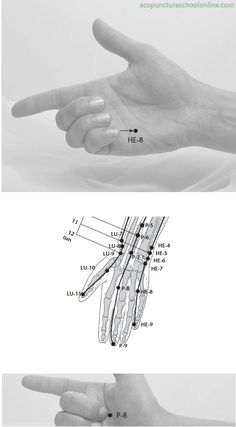 HT 8- Shaofu  ● Clears Heat in the Heart and Small Intestine ● Regulates the Heart Qi for Liver Qi stagnation ● Calms the shen and strengthens the Heart Qi ● Opens the channel, especially for contractures of the fingers  Fire point, ben point (Five Phases)