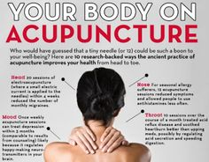10 pretty fantastic reasons to try acupuncture