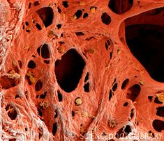 Coloured scanning electron micrograph (SEM) of human lung tissue affected by emphysema. Medical Science, Medical Art, Weird Science, Medical School, Life Science, Scanning Electron Micrograph, Electron Microscope, Structure Of The Universe, Lung Anatomy
