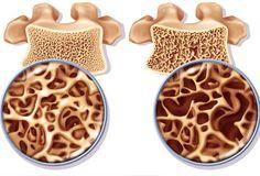 Oefeningen om osteoporose te behandelen en voorkomen - Gezonder Leven