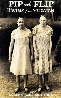"""""""Pip and Flip- Twins from the Yucatan"""" were actually Jenny Lee and Elvira Snow from Georgia. They suffered from microcephaly, characterised by abnormally small craniums which gave rise at the time to the term """"pinhead"""". Like most microcephaly sufferers the Snow sisters were mentally retarded, but although based at Coney Island, they also travelled with the World Circus Sideshow for many years. You might recognize them in Tod Browning's 1932 film """"Freaks"""". (x)"""